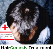 before after pictures of twins prove that HairGenesis non drug hair loss treatment products with natural DHT blockers work